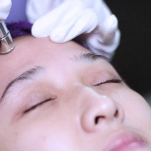 diamond peel bandung lineation centre