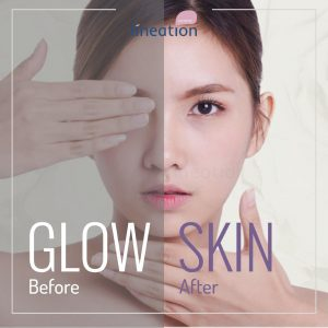 glow skin bandung lineation centre